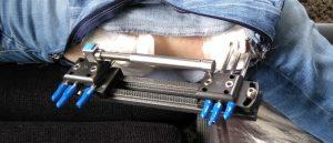 fixateur externe bij beenlengteverschil